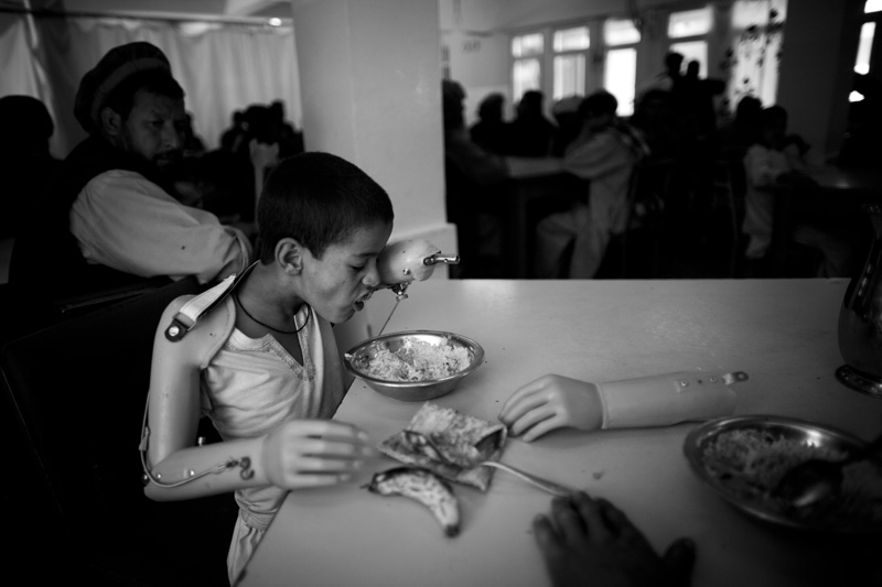 Akram is using his artificial hand for the first time to eat his meal at the International Center for the Red Cross (ICRC). The UN Mine Information Network estimates still after the 30 years war there are approximately 62 people killed or injured by mines each month in Afghanistan.  Photo by Majid Saeedi