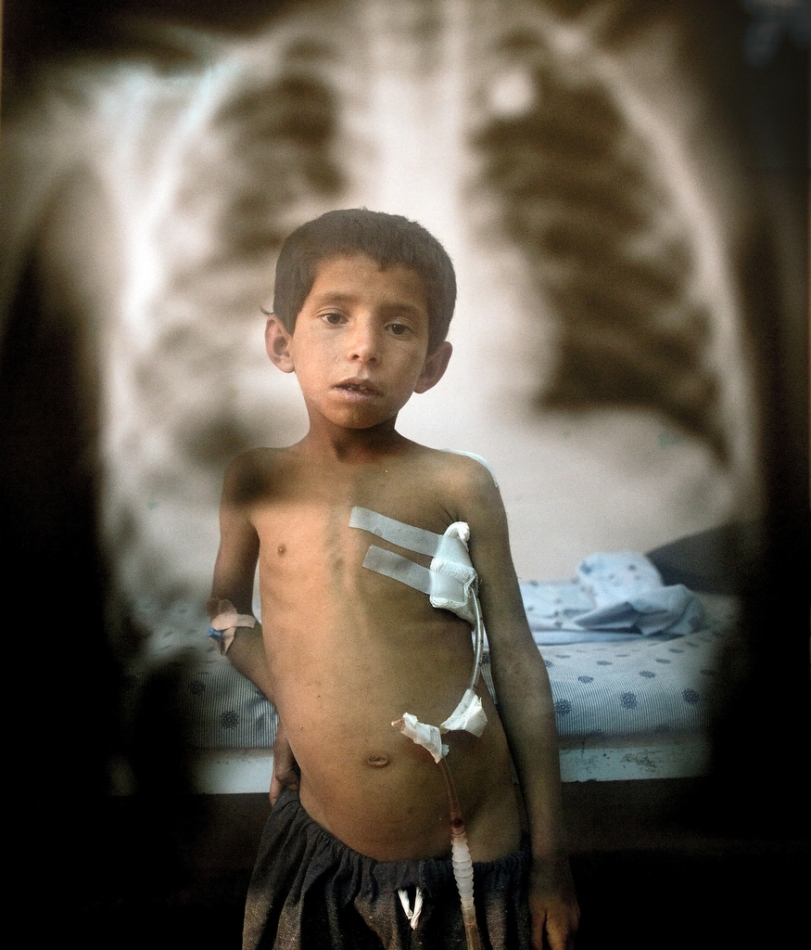 Attiullah,7, is seen posing in front of an x-ray of the bullet that entered the small boy's back coming out through his chest standing by his bed at Mirwais hospital in Kandahar. The small boy was shot by U.S forces as he was walking in the field near his home in the village of Sangissar watching the family's flock of sheep. The soldiers apparently shot at a vehicle that was supposedly Taliban and the boy got hit in the cross fire. Photo by Paula Bronstein