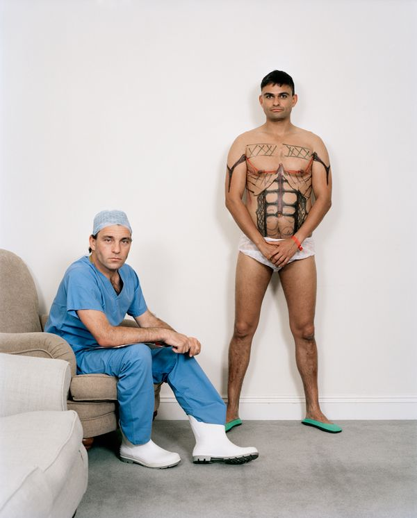 Cosmetic surgeon Grant Hamlet, with patient Matt, age 39 (no surname given) marked up ready for 'six-pack' surgery - liposuction procedure known as Vaser Hi-Def Lipo Sculpture. The procedure, for upper body, is approx £12,000 UK pounds, which included sucking fat from the stomach, 'love-handles, back, and arms, to give a 'sculpted' look, with the muscles more clearly defined. Grant Hamlet has a medical practice in Harley Street, London. Photo by Zed Nelson